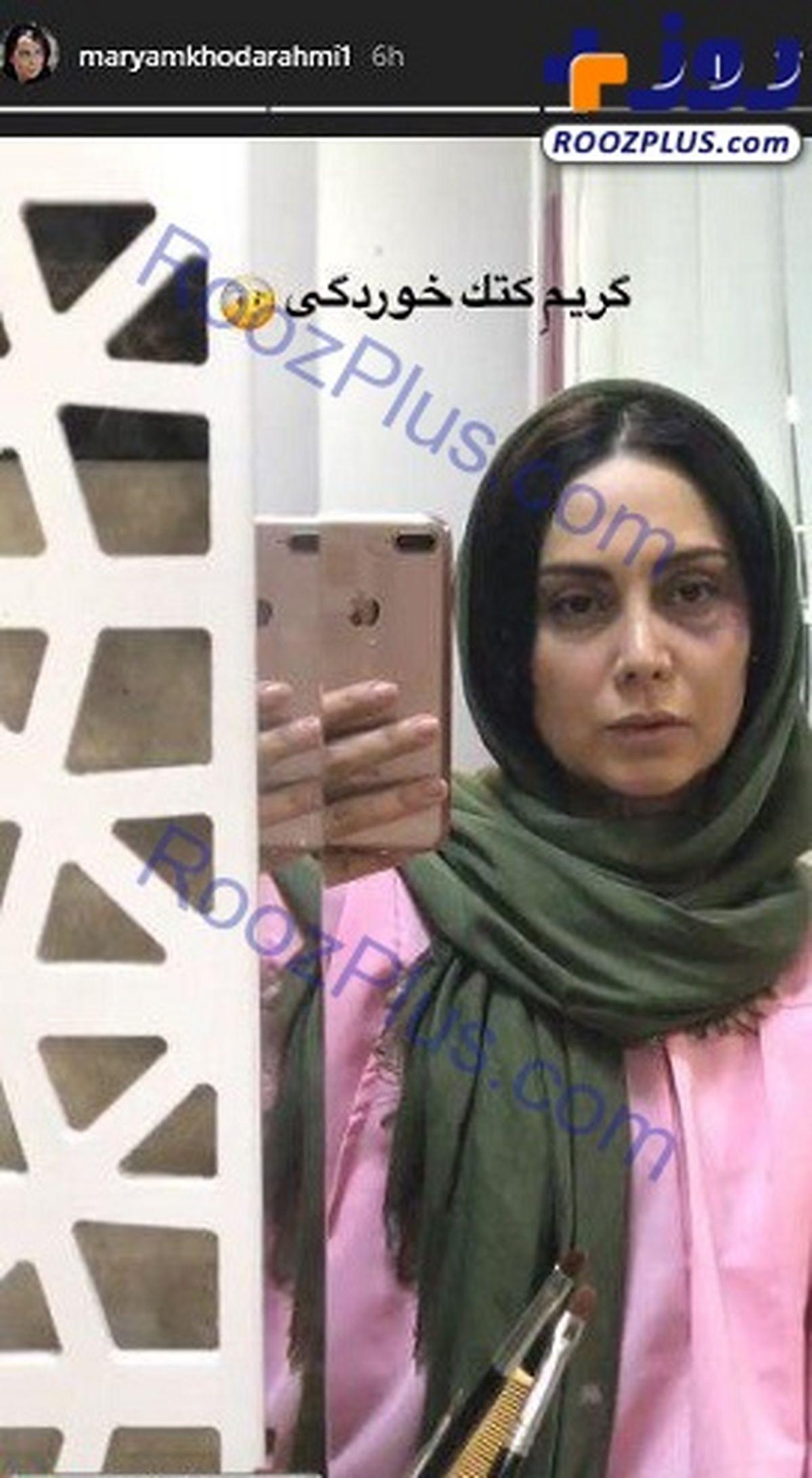 کتک خوردن مریم خدارحمی بازیگر زن ایرانی در کوچه و خیابان+عکس