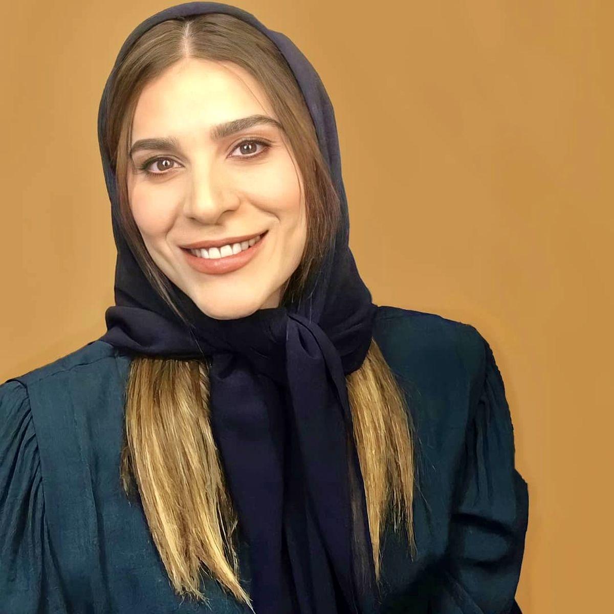 چهره عجیب سحر دولتشاهی بعد از لاغری و جراحی زیبایی +عکس