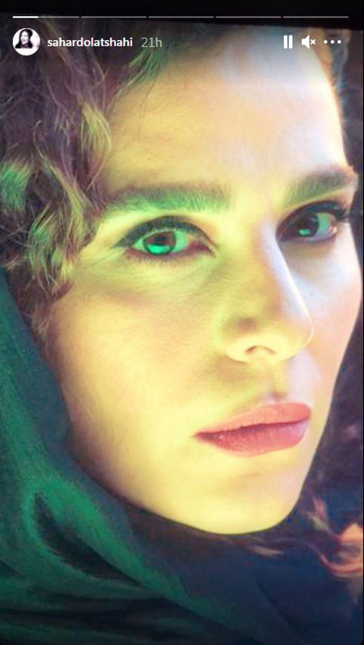 چهره جدید سحر دولتشاهی بعد از عمل های زیبایی + عکس