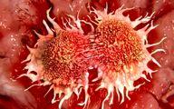 پیرسینگ سرطان زاست؟