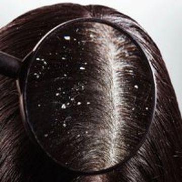 روش های درمان شوره سر را بشناسید+جزییات